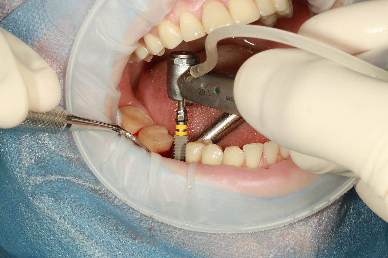 Implant dentaire : quels sont les critères de sélection de prix ?